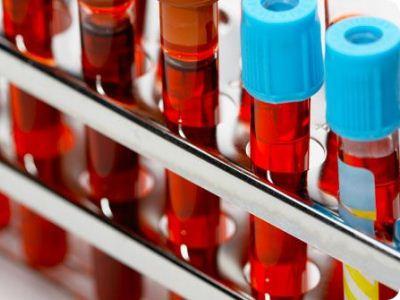 Лабораторные анализы, где сдать анализы на аллергены и скрытые инфекции в СПб